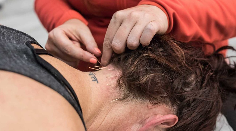 Dry Needling  Powerful in treating soft tissue dysfunction, pain, neuromuscular injury and imbalance, and can boost the process of returning a patient's body to a state of balance.