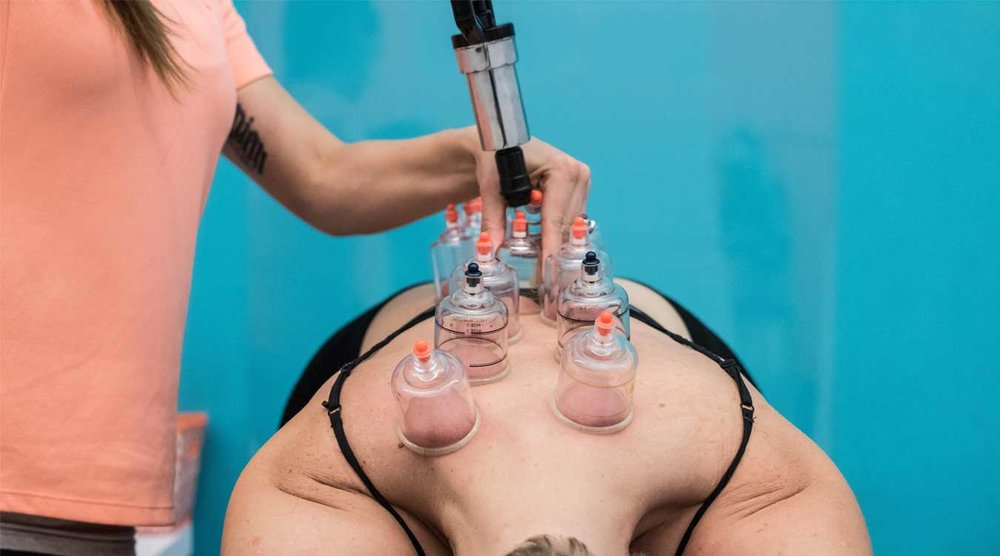Vacuum Cupping  An ancient form of therapy that makes use of suction to create a pressure that is similar to a deep-tissue massage for the muscles.