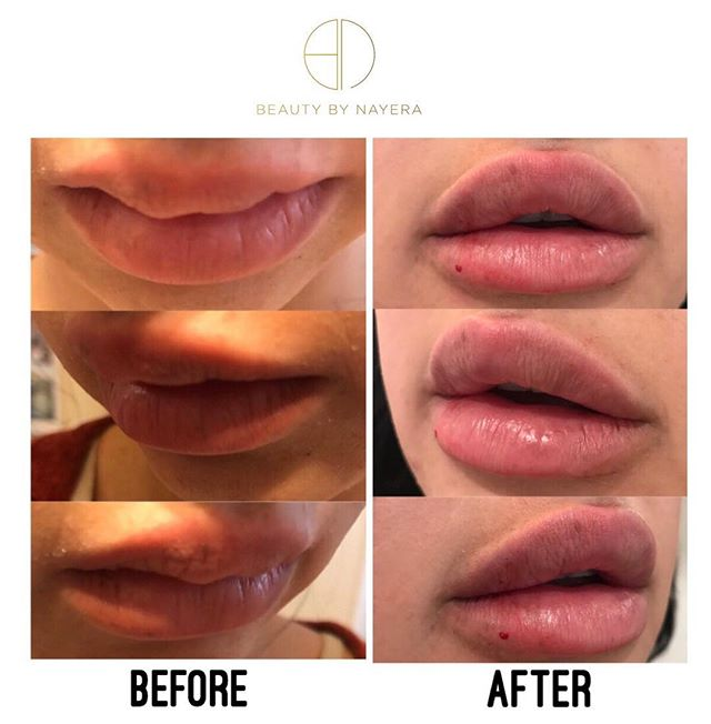 BEFORE || AFTER CORRECTION  client had been injected by another injector in the before photo. I dissolved her lips, had her wait one week ..then came back for her correction!  #aesthetic #aesthetics #beauty #beautyguru #dressyourface #face #hudabeauty #anastasiabeverlyhills #nyc #nyxcosmetics #nyx #injections #injectables #kkwbeauty #kyliecosmetics #kyliejennerlipkit #mua #makeup #kimkardashian #pout #correction #plasticsurgery