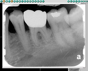 Figure 1. A digital radiograph of this patient's symptomatic tooth No. 19. This image initially suggested incipient periapical pathology at the mesial apex, but was not conclusive.
