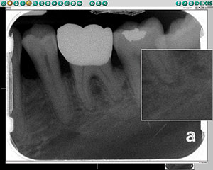 Figure 2. Adjusting contrast and magnifying the mesial apex using the digital radiographic system's associated software helped confirm the diagnosis of apical periodontitis.