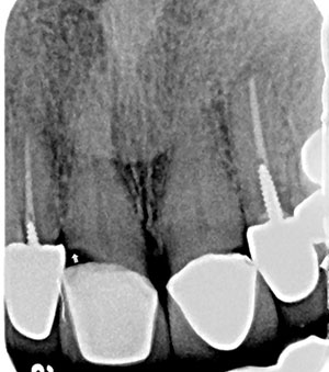 Figure 3. This radiograph, when shown to a patient with subgingival decay at her upper centrals (indicated by the cursor), helped her understand the need for core placement and replacing the existing crowns.
