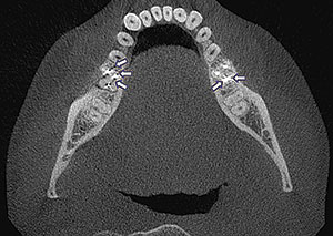Figure 7. CBCT in this case revealed radicular crazing at No. 19 (left arrows) and 2 canals in close proximity at the distal root of endodontically treated tooth No. 30 (right arrows).
