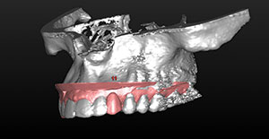 Figure 11. CBCT and impression scanning provide a unified virtual model upon which the correct contours and position of the implant crowns (both provisional and definitive) can be first designed.