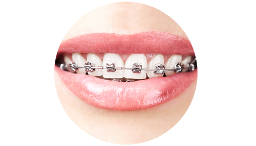 Landmark Smiles of Scottsdale Braces Special 5254.png