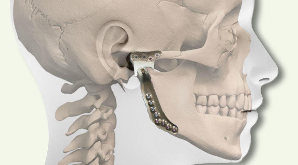 tmj implants.jpg