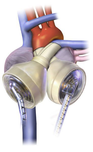 syncardia image.jpg