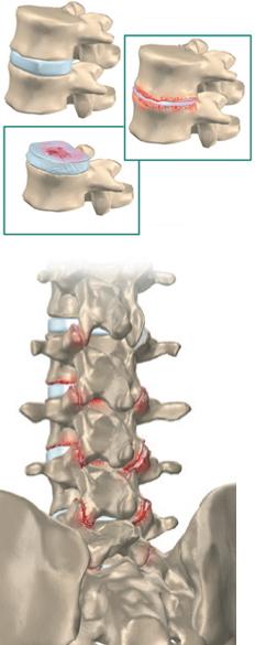 Discopatia Degenerativa Dolorosa e Artrose Facetária