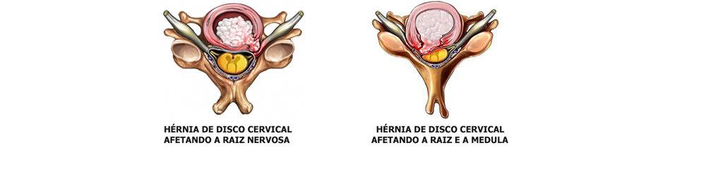 Hérnia de Disco Cervical 2 - Dr. Ernani Abreu - Ernani Abreu - Centro Cirurgia da Coluna - Cirurgia da Coluna - Porto Alegre - Centro Clínico Mãe de Deus.jpg