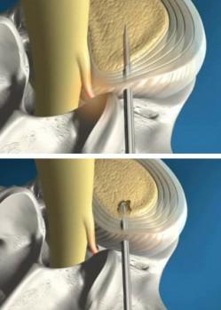 Cirurgia Percutânea da Hérnia de Disco