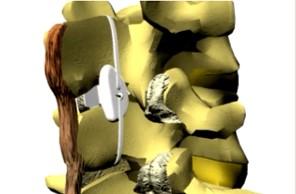 Fixação Dinâmica da Coluna Lombar