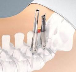 Artrodese Lombar Minimamente Invasiva 2 - Dr Ernani Abreu.jpg