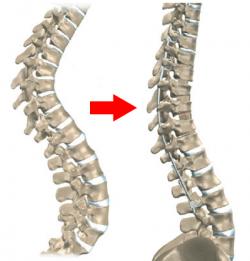 Artroplastia: Prótese de Disco