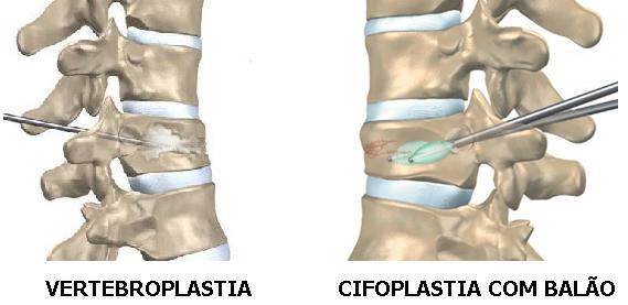 Vertebroplastia e Cifoplastia.jpg