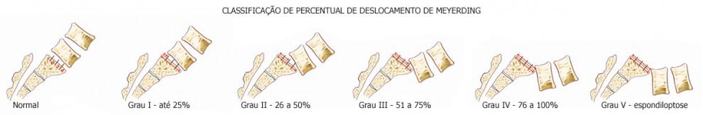 espondilolistese classificação.jpg
