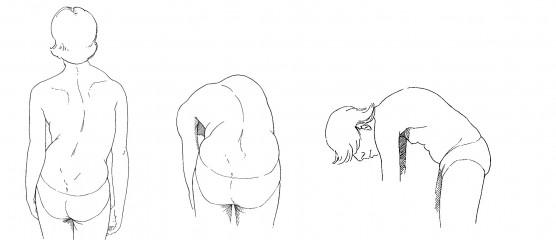 sintomas da escoliose.jpg