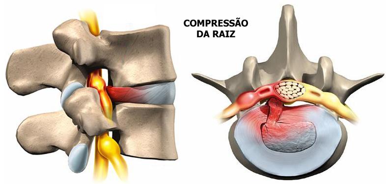 hernia de disco lombar.jpg