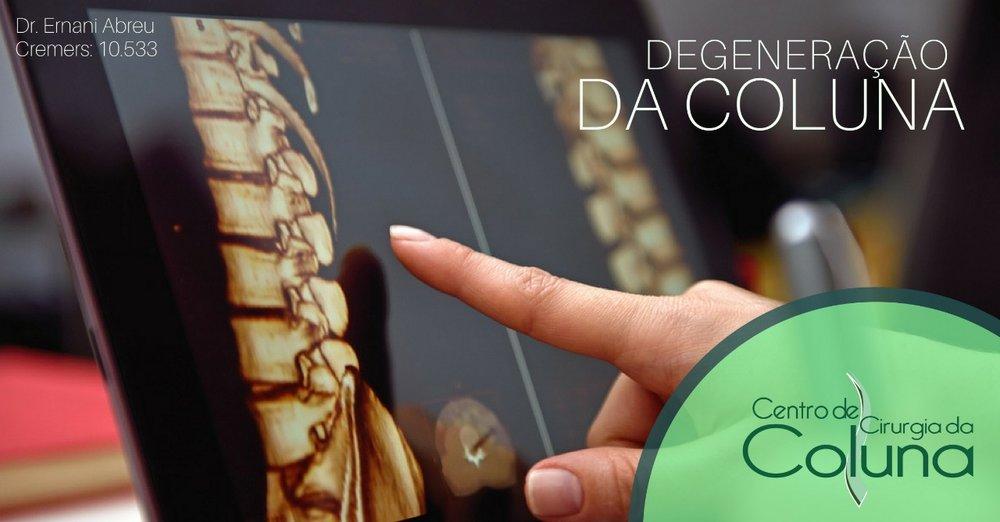 Degeneração da Coluna - Dr. Ernani Abreu - Ernani Abreu - Centro Cirurgia da Coluna - Cirurgia da Coluna - Porto Alegre - Centro Clínico Mãe de Deus.jpg