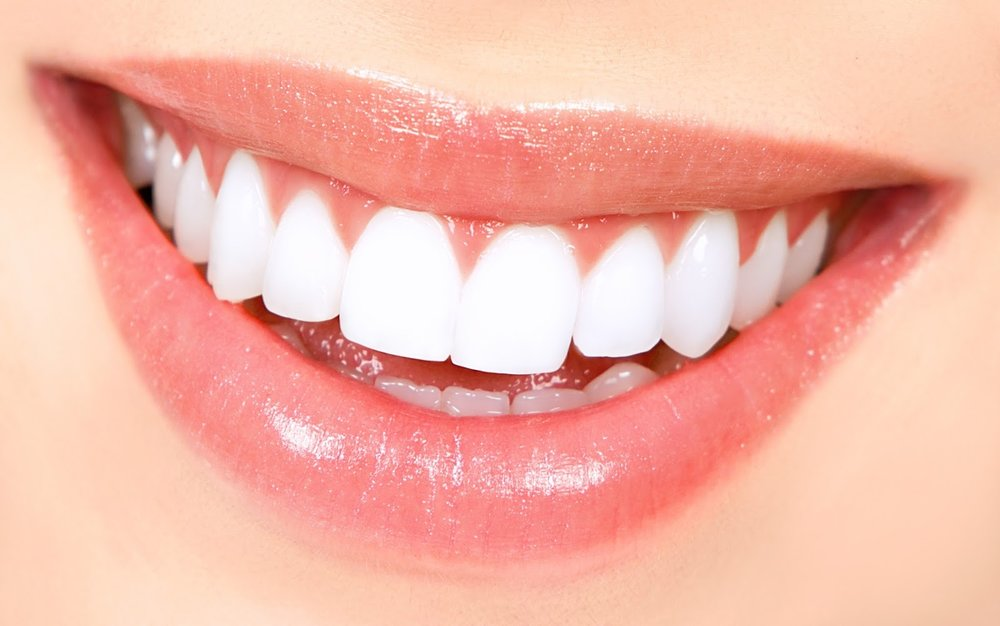 Smile Makeover -