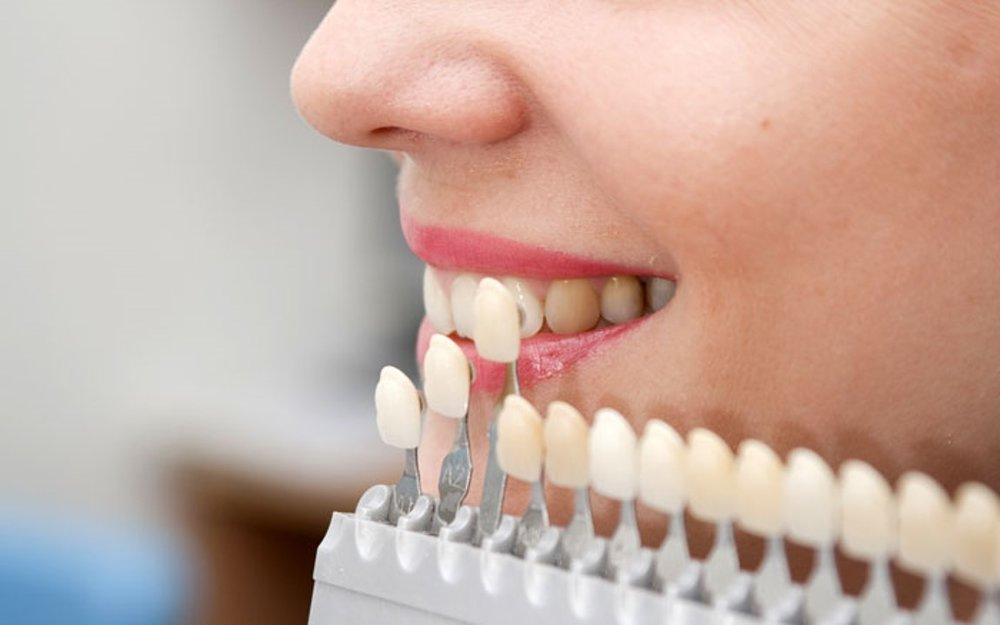 dental-crowns-westminster-family-dentistry-1-700.jpg