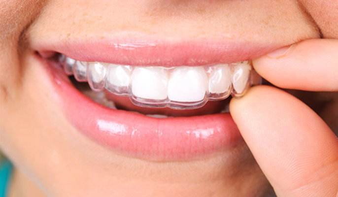Clear Correct - Ditch the braces