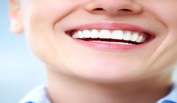 Porcelain Veneers - Giving you a younger, brighter, and more uniform smile