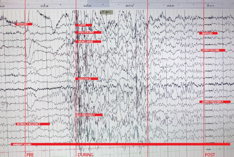 We mapped the  Before  seizure tendencies,  During  seizure brain waves and  After  seizure EEG pattern and assign sound qualities to it.