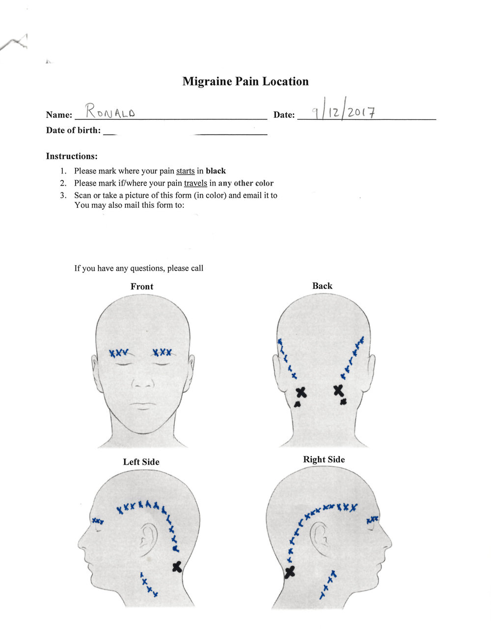 """I marked the """"spot"""" with a black X on this pre-screening form that the migraine surgeon had me fill out before agreeing to see me."""