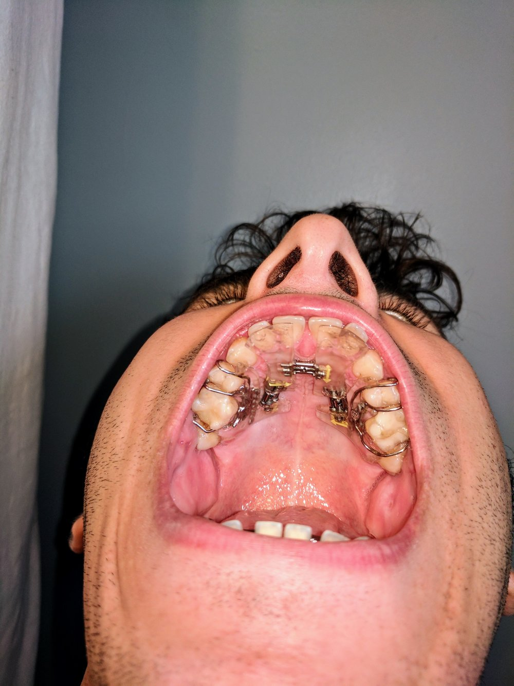 Teeth flaring after 5 months with traditional expander