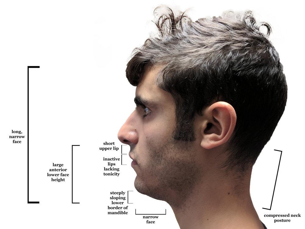 Adenoid Face.jpg