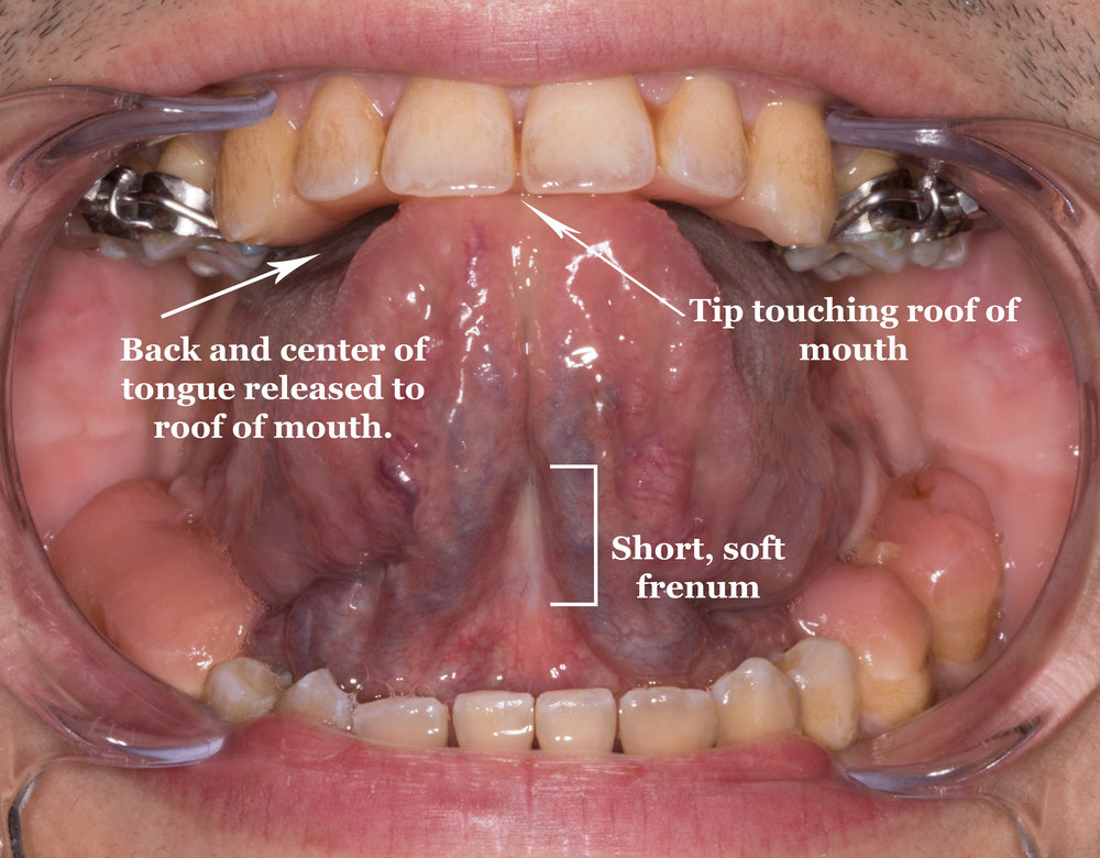 8 Months After Frenectomy