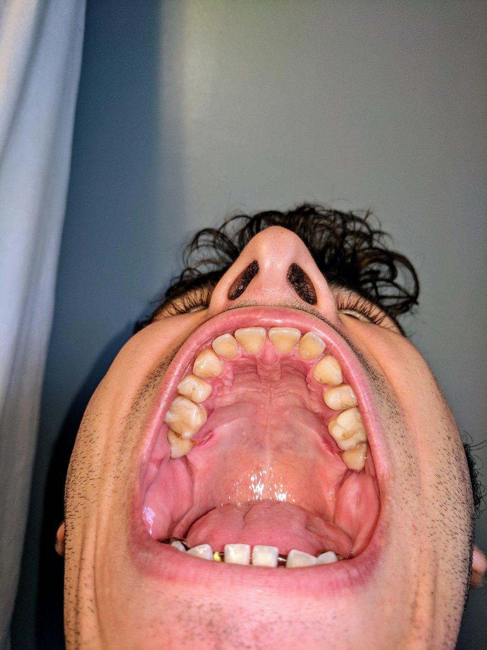 What flaring teeth look like.