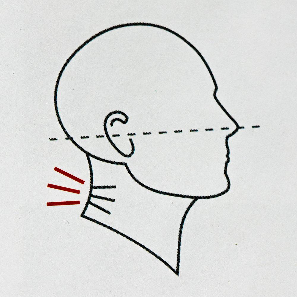 "Gokhale's ""poor,"" ""compressed"" neck posture"