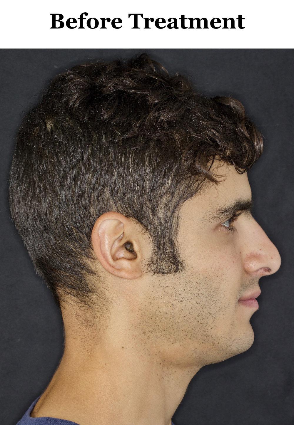 Before_Side Profile.jpg