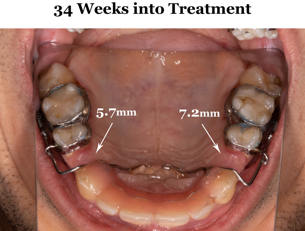 34 Weeks Full Arch.jpg