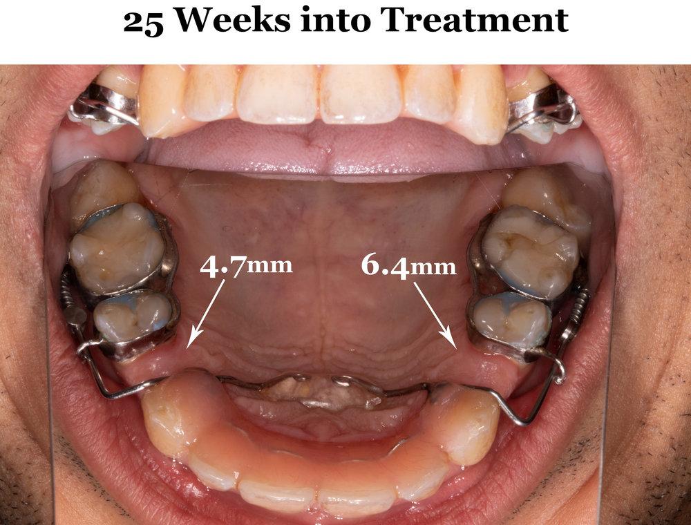 25 Weeks Full Arch.jpg