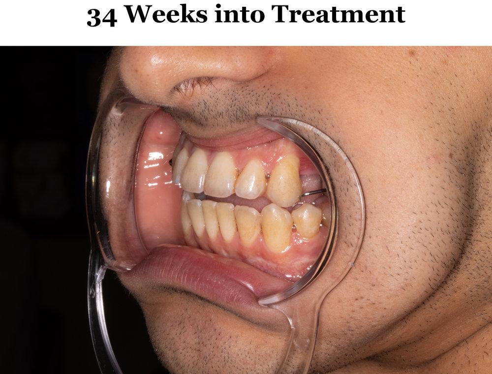 34 Weeks Tilt 2.jpg