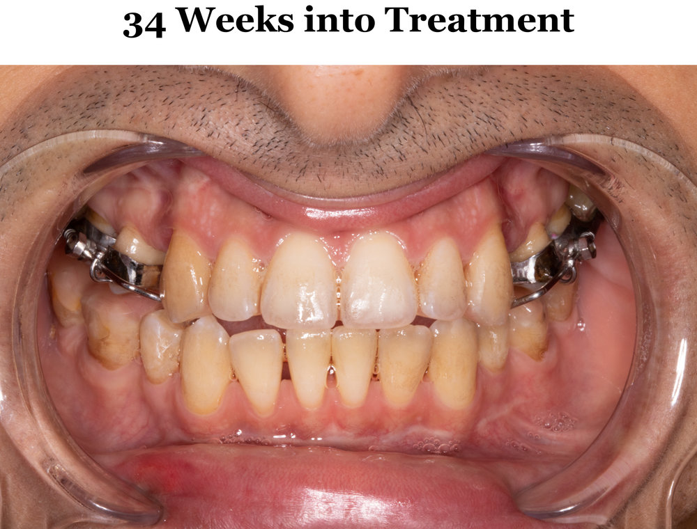 34 Weeks Tilt 1.jpg