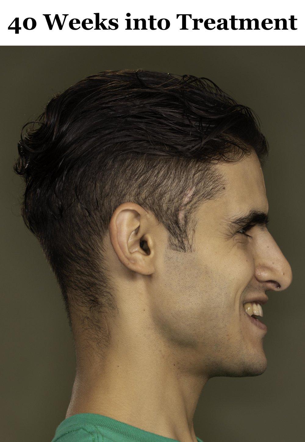 40 Weeks Side Profile Smile.jpg