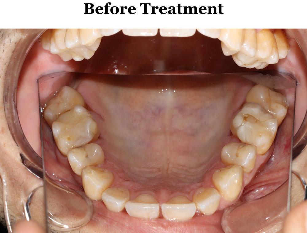 AGGA treatment began on 11/13/2017