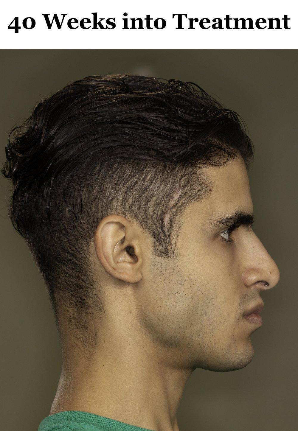 40 Weeks Side Profile.jpg