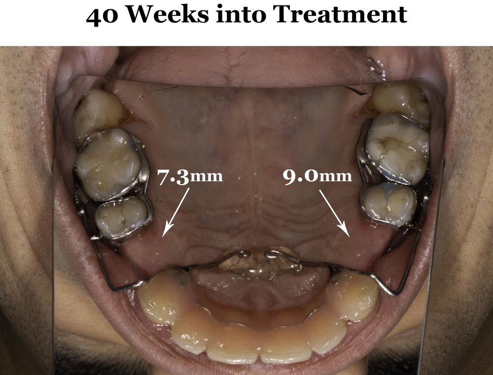 My maxilla is now close to 1 cm longer