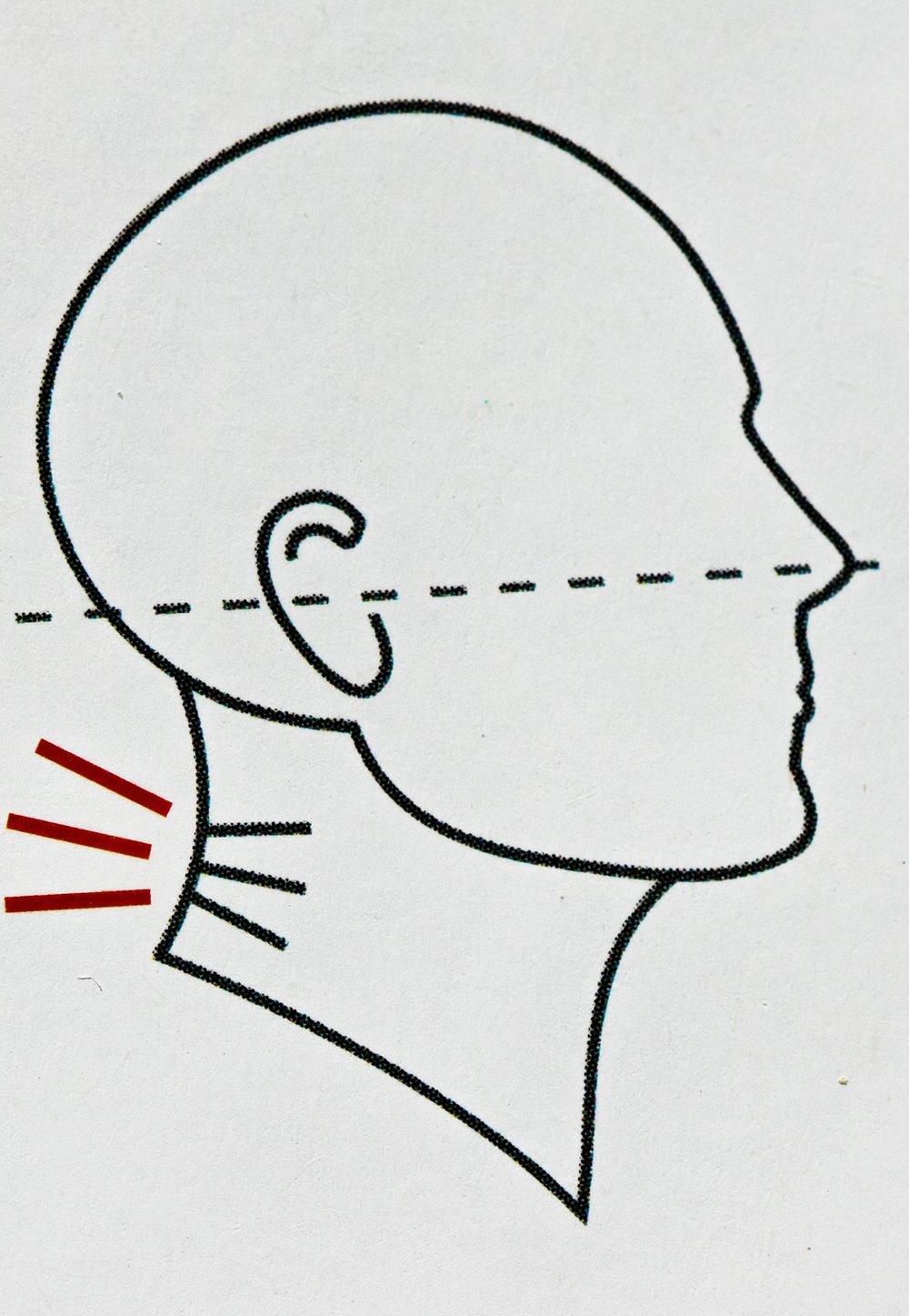 """Gokhale's """"Compressed neck posture"""""""