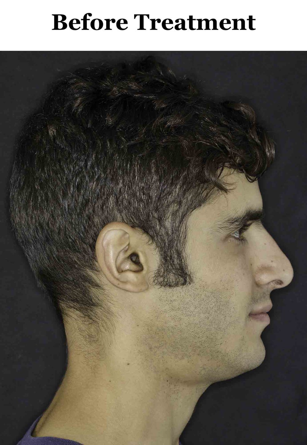 Before_Side Profile_1.jpg