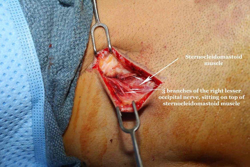 migraine surgery lesser occipital nerve dr ziv peled