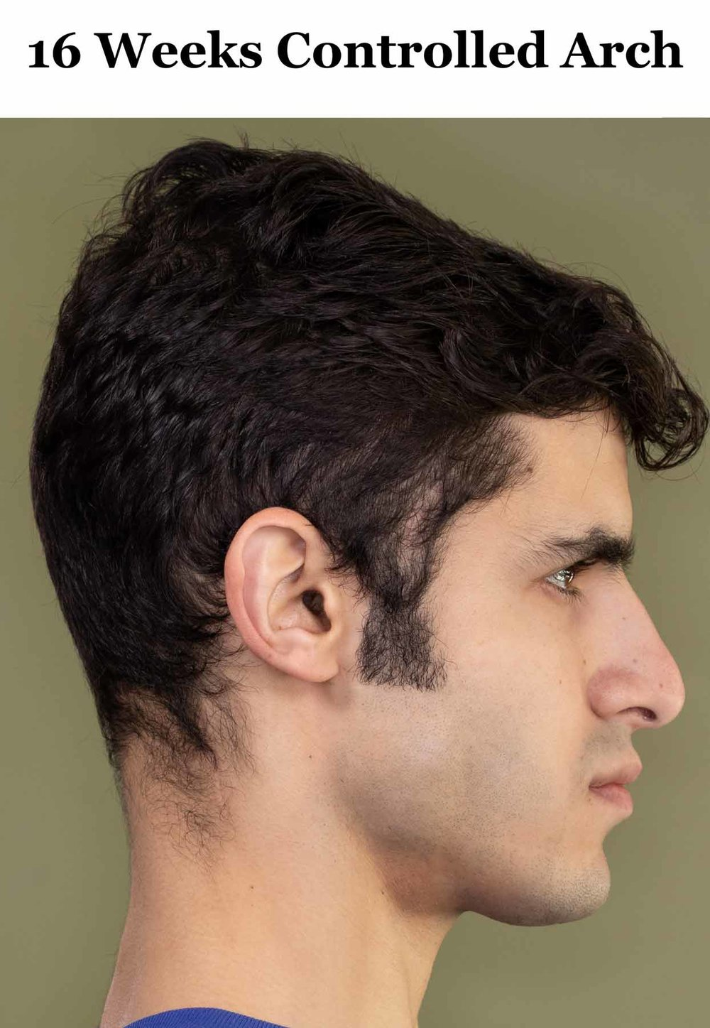 ca_16-weeks_side-profile.jpg