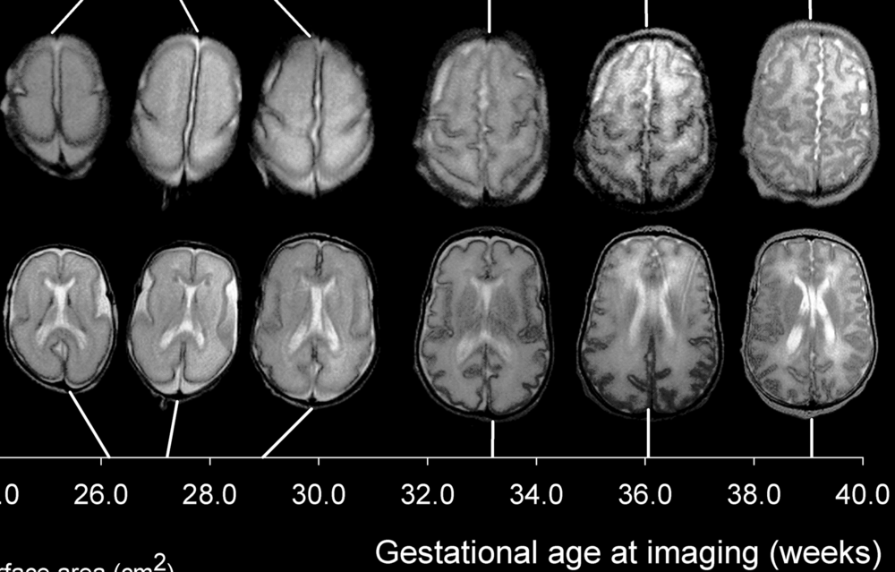 Human cortical development between 26 and 39 weeks of gestational age. (Image: Wikipedia)
