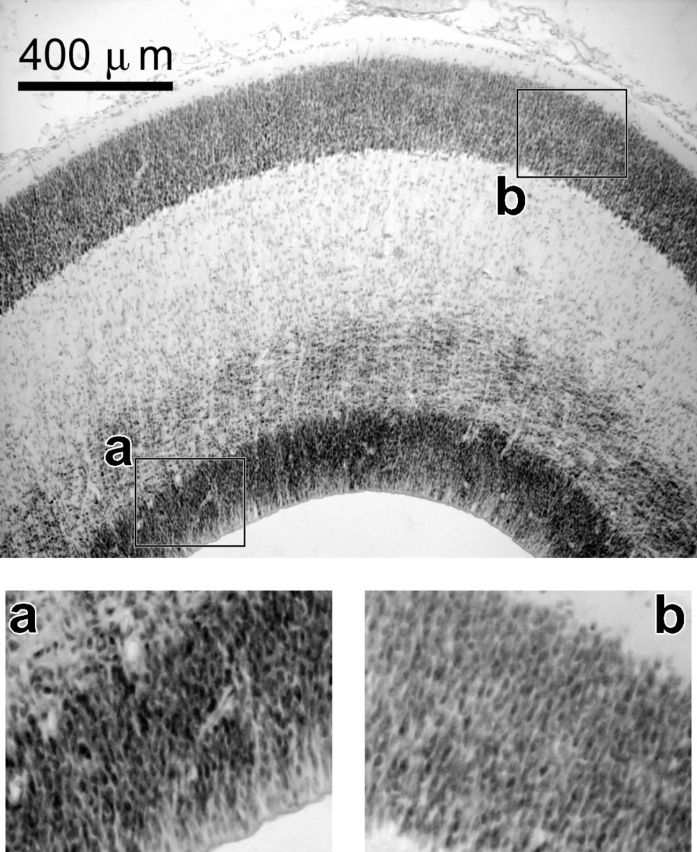 Image: The cerebral cortex is a highly organized brain structure. In early development, brain cells, labeled (a), surround the core cavities of the brain before they migrate to the cortex. They make their way through the white matter of the brain in order to reach the cortical plate (b), or future cerebral cortex. In autism, this process is often disrupted. (Image courtesy of Dr. Manuel Casanova)