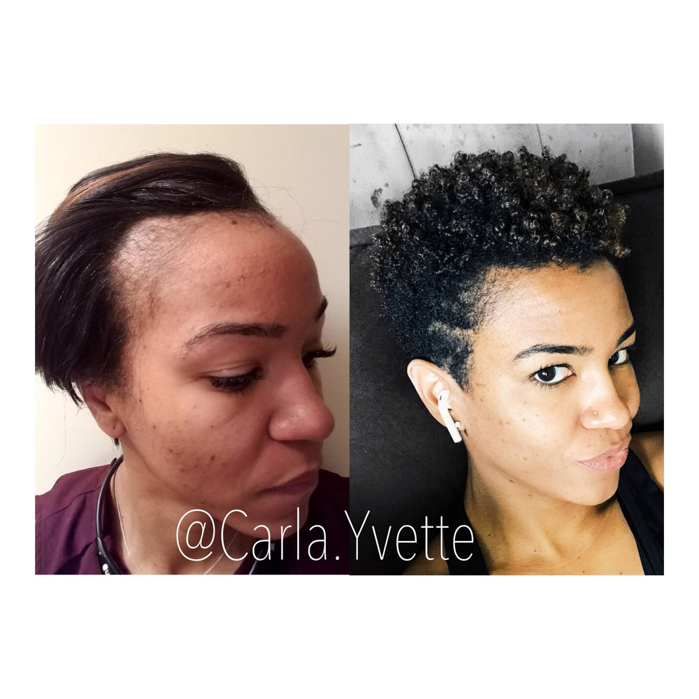How To Reverse Postpartum Hair Loss Thinning Naturally Carla