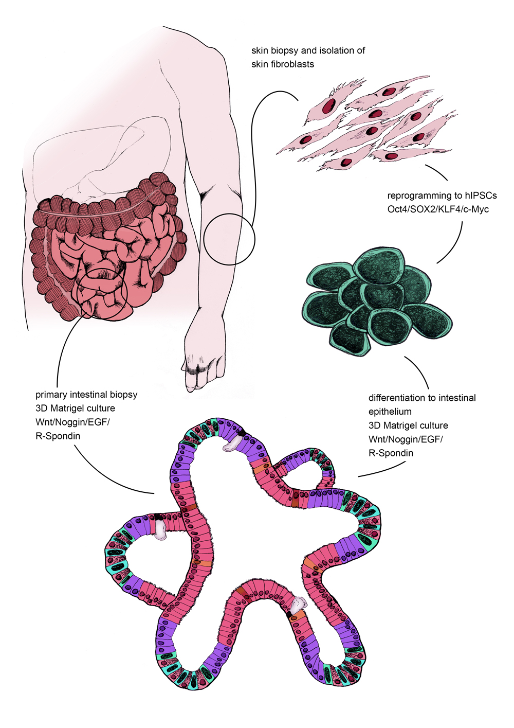 Figure 3: Creating intestinal organoids from a direct intestinal biopsy vs. from induced Pluripotent Stem Cells.